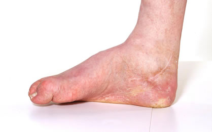 High Arch – Pes Cavus – Ankle to Foot Clinic