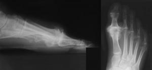 Big Toe Joint Osteoarthritis(Hallux Rigidus)